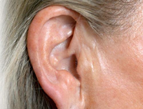Correção de Lóbulo de Orelhas e Cicatrizes